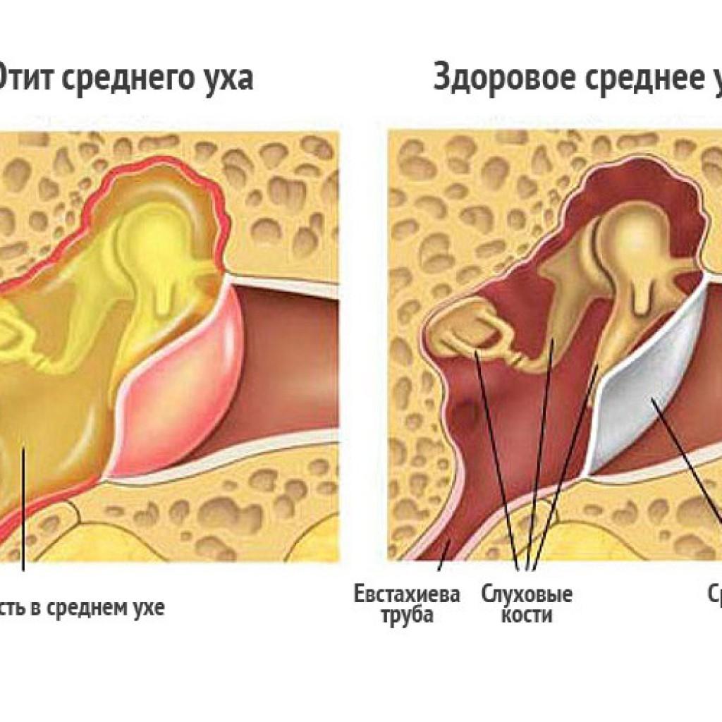 Лечение отита в домашних условиях 5 эффективных средств 59
