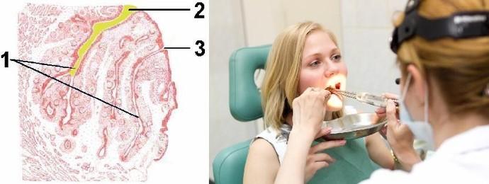 Пробки в миндалинах при беременности
