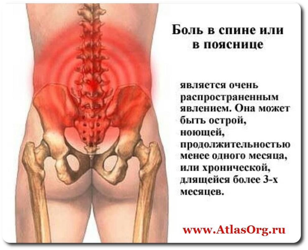 Болит спина. как лечить в домашних условиях