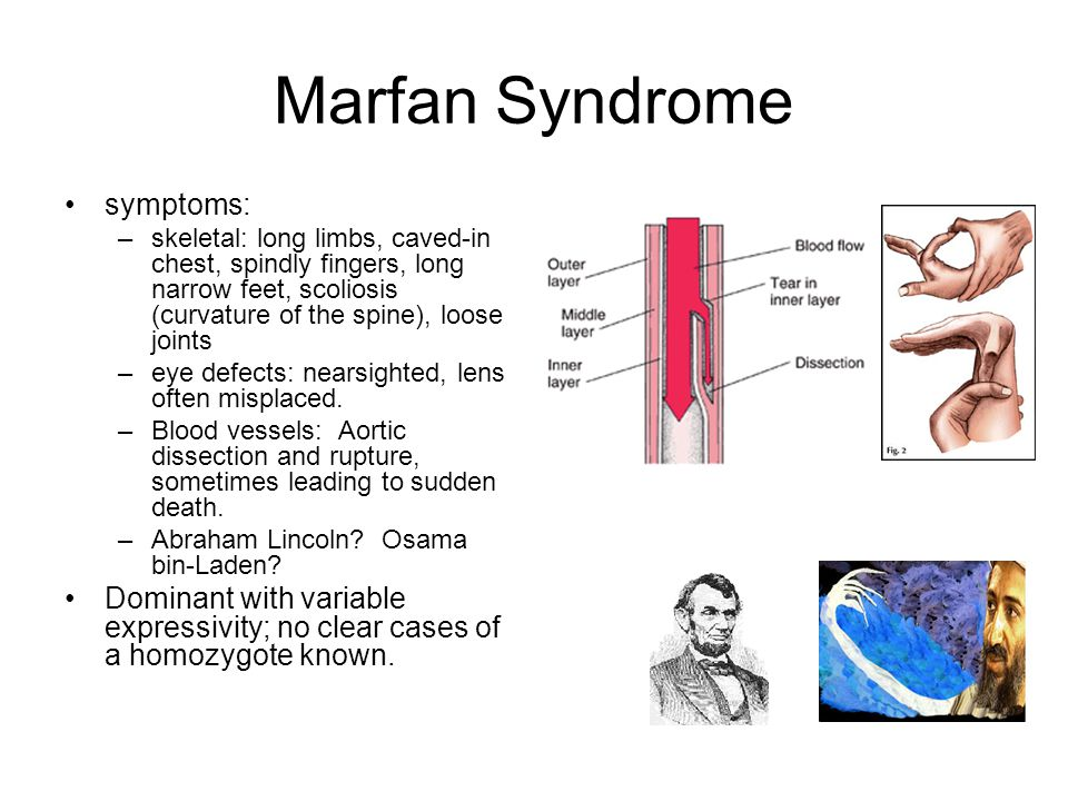 Marfan syndrome research paper