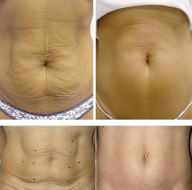 Как убрать обвисший живот после родов, похудения