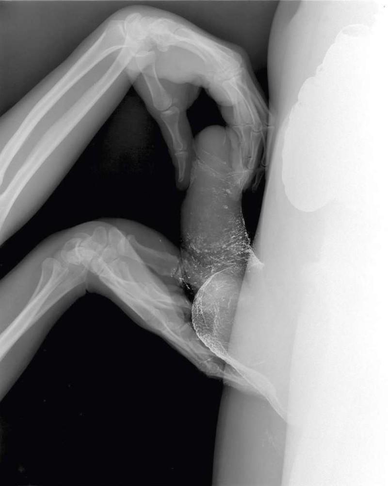 трах жены под рентгеном сводила