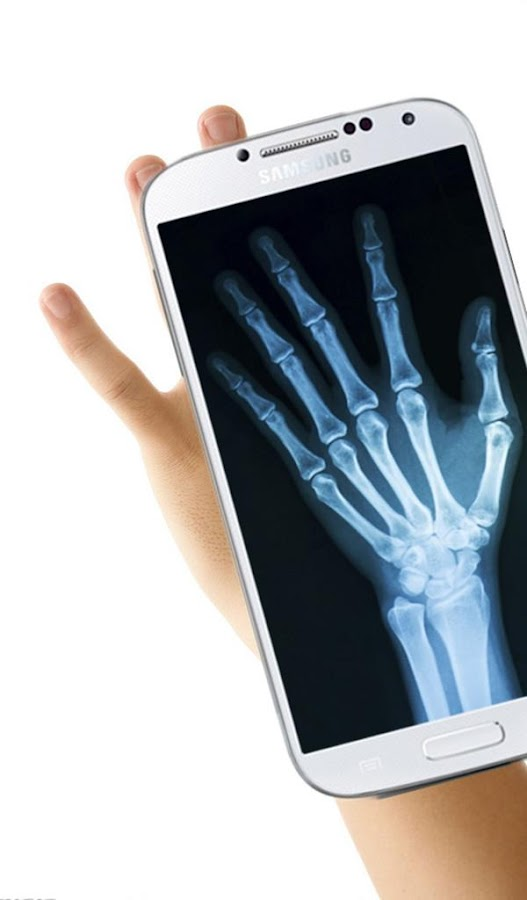 Download X-Ray - free - latest version