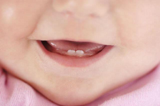 Если зубки у ребенка режутся сколько времени они будут болеть