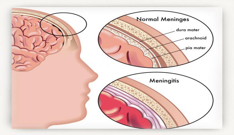 Почему у ребенка болит голова? Симптомы