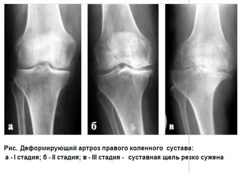 Чем отличается деформирующий артроз от остеоартроза: Чем ...