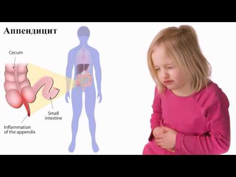 Где болит живот при аппендиците у ребенка