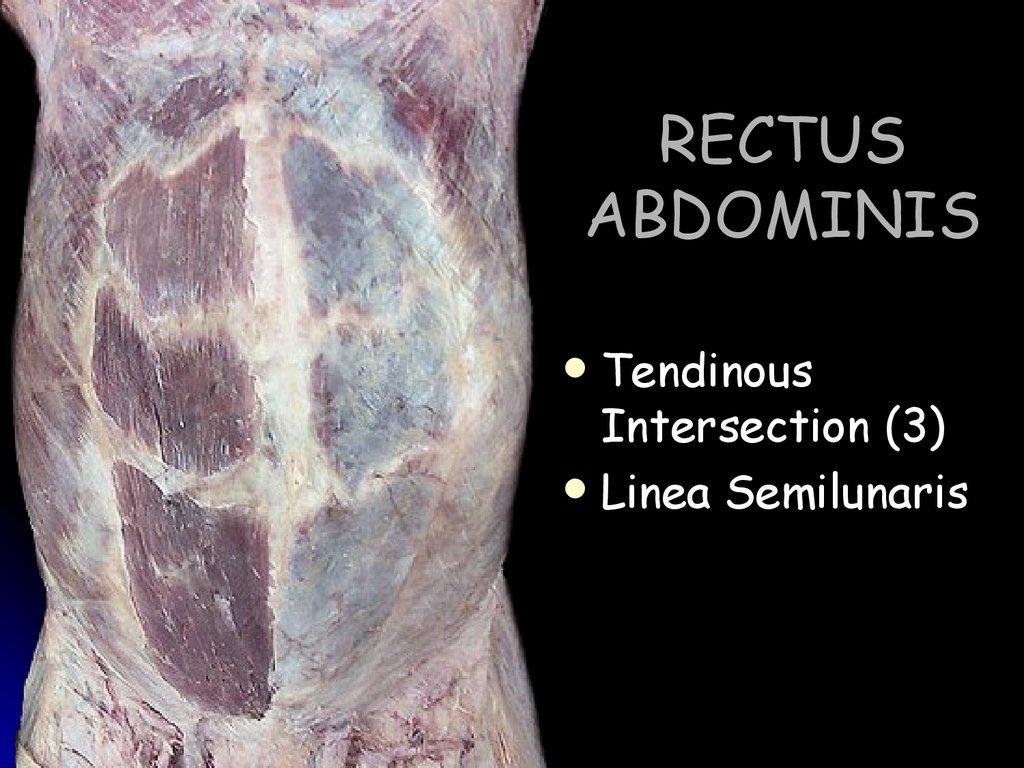 Diastasis Recti - The Tummy Team