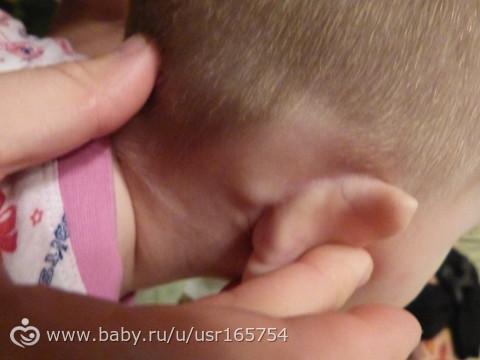 У ребенка шишка за ухом: причины, лечение